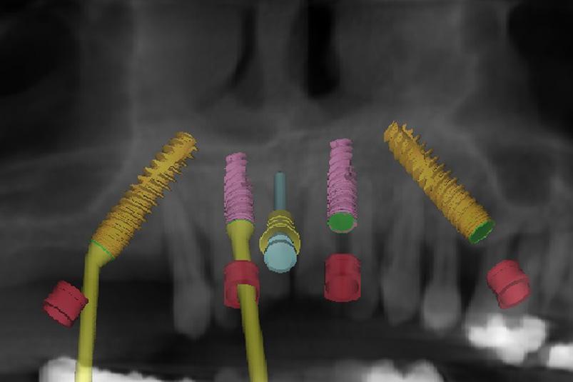Neue Lebensqualität mit Zahnimplantaten